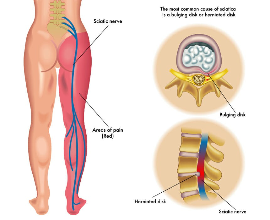 sciatica diagram image